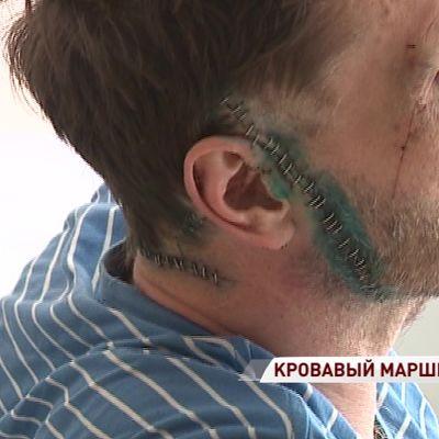 «Конфликта с пассажиром не было»: водитель рассказал о нападении буйного пассажира с ножом