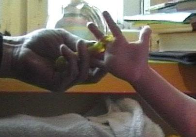 Застрял палец в детском конструкторе