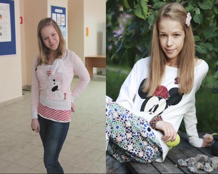 От анорексии умерла девушка