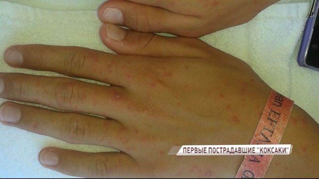 Турецкий вирус «коксаки» дошел до Ярославля