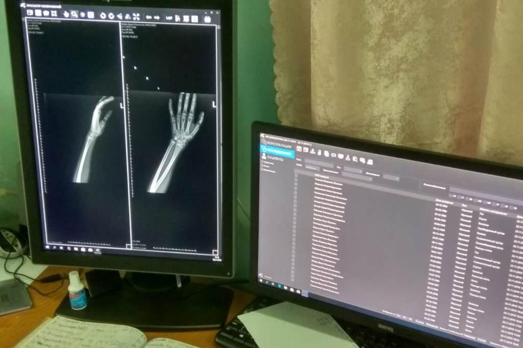 В рыбинскую больницу имени Пирогова закуплен новый цифровой рентген-аппарат