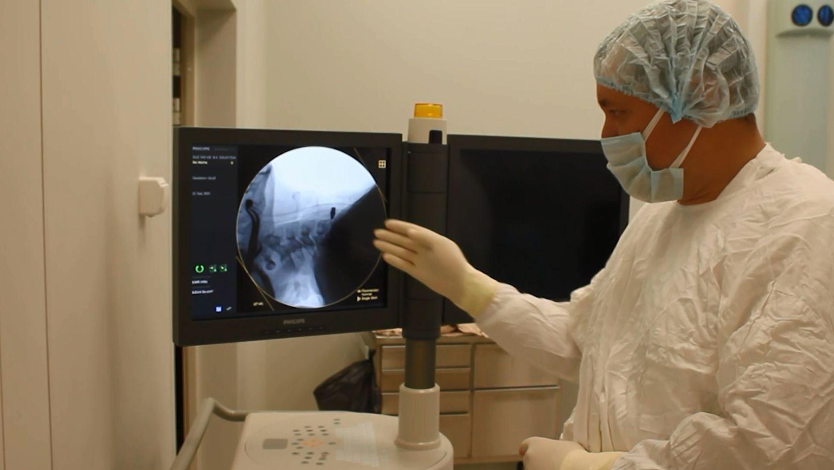 Врачи Соловьёвской больницы Ярославля получили новый аппарат, с помощью которого можно разглядеть даже мельчайшие сосуды
